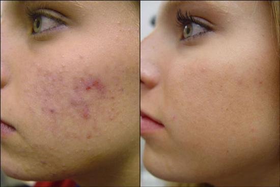 Пилинг лица и лазерное лечение прыщей — эффективный способ помочь ребёнку