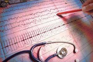 Главный кардиолог Москвы: «После 35 лет нужно регулярно показываться врачу»