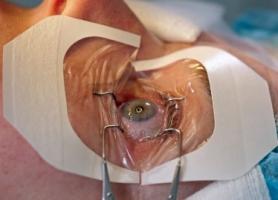 Сочетание лазерной и фотодинамической терапии в лечении сосудистых заболеваний глаза