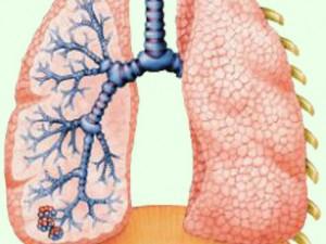 FDA одобрило Комбивент респимат для лечения хронической обструктивной болезни легких (ХОБЛ)