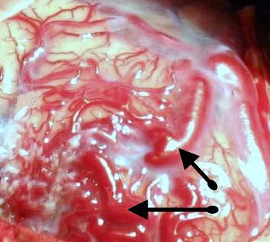 Пациентам с кровоизлияними в мозг можно назначать низкомолекулярный гепарин