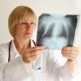 Лечение бронхиальной астмы требует персонализированного подхода