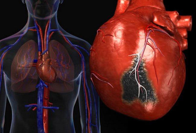 Найдено суперлекарство от инфарктов
