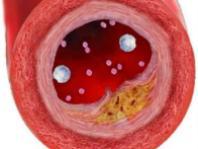 Риск инсульта зависит от группы крови