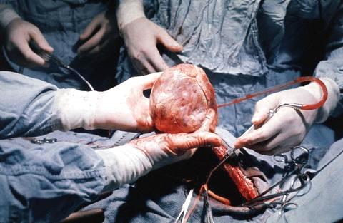 В России провели первую успешную операцию по пересадке легких и сердца