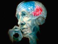 Разработан биосенсор, позволяющий диагностировать ранние стадии развития нейродегенеративных заболеваний