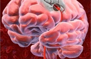 Мини-инсульты сокращают жизнь на 20%, – ученые