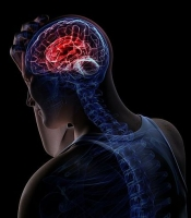 Пропедевтика синдрома «Головная боль»