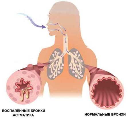 Эффективность лекарств от астмы зависит от генов