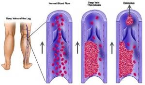 «Тромбоз путешественников»: факторы риска, особенности поражения и подходы к профилактике