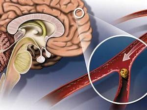 Почему развивается инсульт?