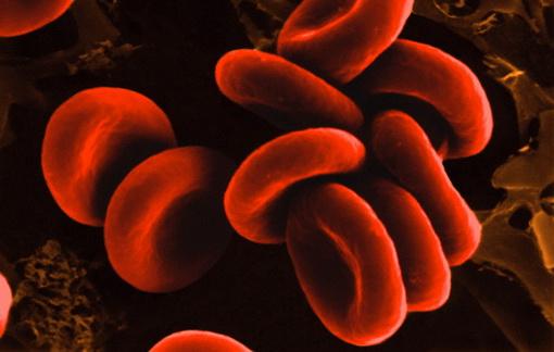 Существует взаимосвязь между группой крови и риском инсульта