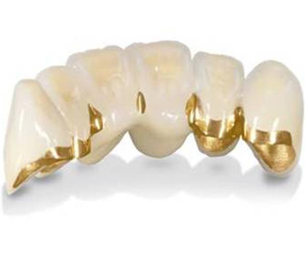 Преимущества металлокерамики в современной стоматологии