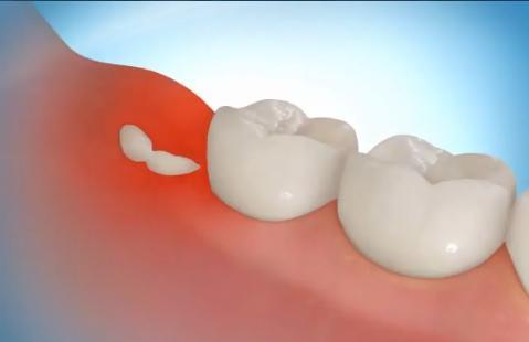 Зуб мудрости. Лечение народными средствами