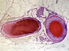 Изобретатели получили клетки, подходящие для выращивания любых сосудов