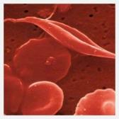 Устранение железодефицита: растительные ферритины – лучший источник железа?