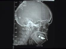 Тяжелые травмы мозга в детстве имеют долгосрочные последствия