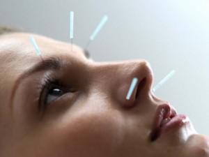 Иглоукалывание при мигренях: новое исследование – новый взгляд