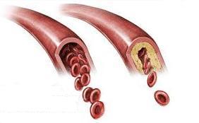 Действие статинов не ограничиваются снижением содержания липидов в крови