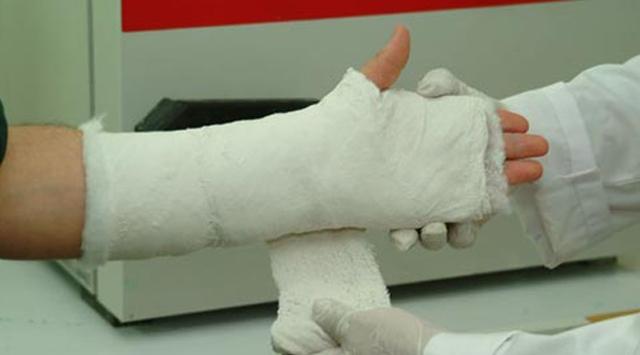 Работу мозга меняет перелом руки