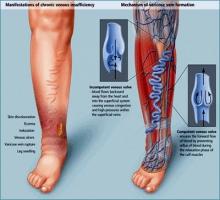 Анализ причин отека нижних конечностей у больных с варикозным расширением вен