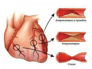 Атеросклероз сосудов сердца – фактор риска рака предстательной железы
