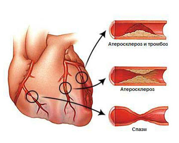 Атеросклероз сосудов сердца — фактор риска рака предстательной железы