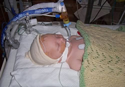 Инсульт еще до рождения – не стал приговором