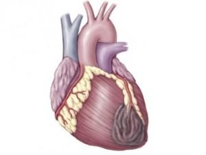Смертность от инфарктов в Великобритании сократилась вдвое