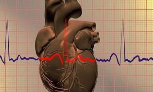 Блестящие достижения кардиологов из Тюмени