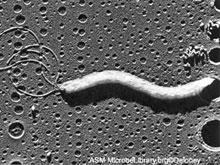 Диабет, возможно, вызывают бактерии, делают предположение медики