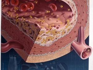 Американцы успешно испытали новые препараты для снижения холестерина