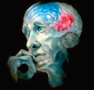 Небольшой образец крови выявит скрытое развитие болезни Альцгеймера