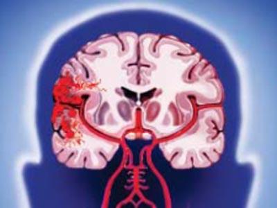 Причины возникновения инсульта. Стратегия выживания после инсульта