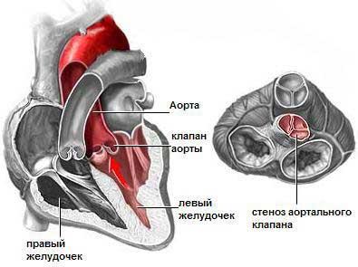 Бесшовная замена аортального клапана