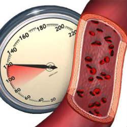 Гипертония – какое давление считается высоким?