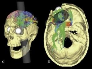 Неврологи объяснили изменения психики Финеаса Гейджа после травмы головы