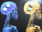Новое в профилактике эпизодической мигрени