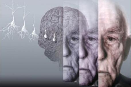Болезнь Альцгеймера, связь между прошлым и будущим