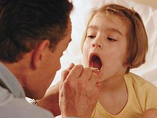 Ларингит у детей: советы по лечению