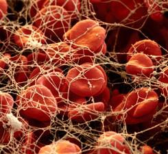 Для чего нужно переливание крови из вены в ягодицу