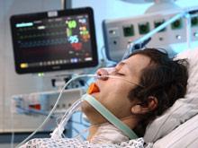 Искусственная вентиляция легких вызывает сильное воспаление, установил эксперимент