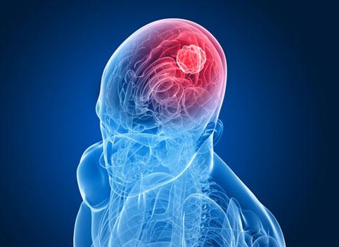 Разработан новый метод лечения опухоли мозга