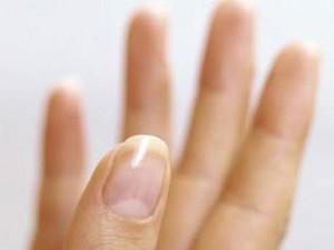 Ногти могут многое сказать о здоровье человека
