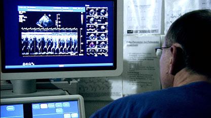 Создано революционное лекарство от легочной гипертензии
