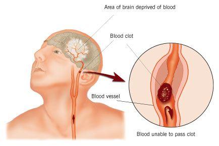 У людей, перенесших инсульт, могут быть рецидивы