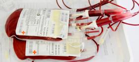 20 ноября 1979 год – впервые в истории медицины больному влили искусственную кровь
