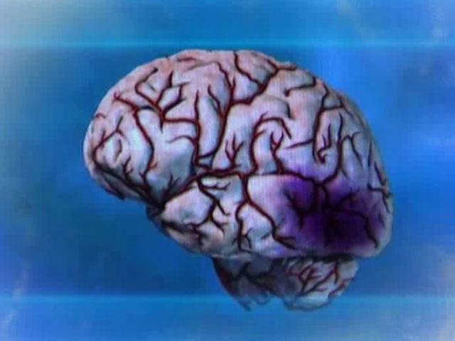 Резистентность к аспирину ведет к тяжелому течению инсульта