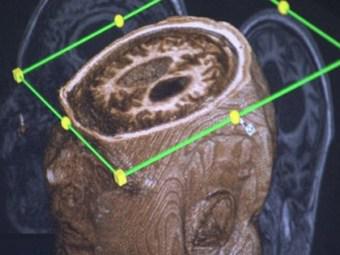 Находящийся в вегетативном состоянии канадец пообщался с врачами при помощи МРТ