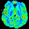 Даже легкая ЧМТ серьезно повреждает головной мозг